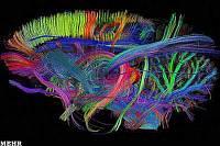 http://s4.picofile.com/file/7766752682/thumb2.jpg