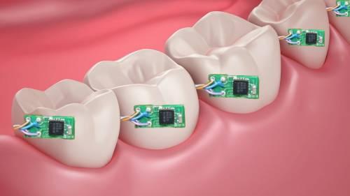 دندان دیجیتال