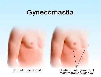 [تصویر:  gynecomastia2.jpg]