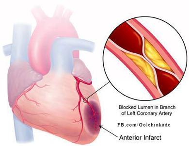 جلوگیری از سکته قلبی