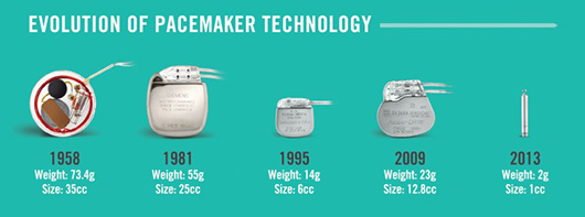 Evolution of Pacemaker Technology
