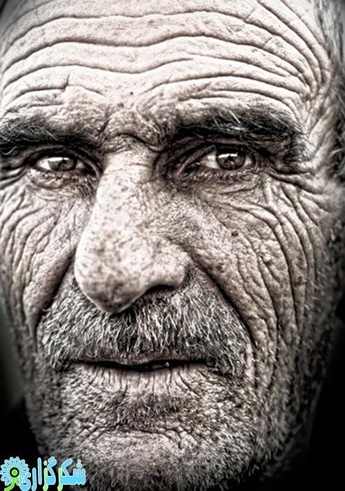 چین و چروک پوست پیری پوست پیری زودرس پوست درمان پیشگیری عکس تصویر آقایان خانم ها مردان زنان
