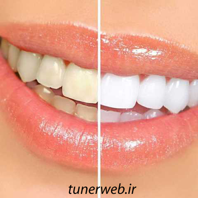 سفید کردن دندانها با چند روش طبیعی