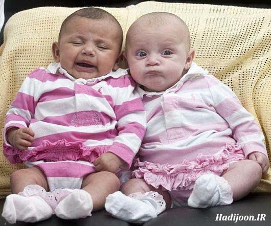 تصاویر سیاه و سفیدترین دوقلوهای دنیا