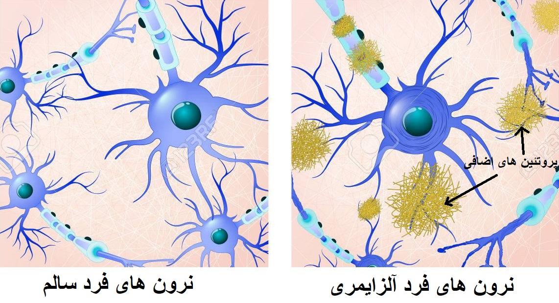 پروتئین های موثر در آلزایمر