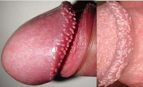 ضایعه تناسلی برفک واژن تبخال تناسلی زگیل تناسلی وستیبولار